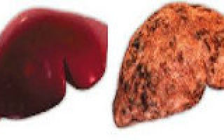 Алкогольный гепатит симптомы и лечение: цирроз печени