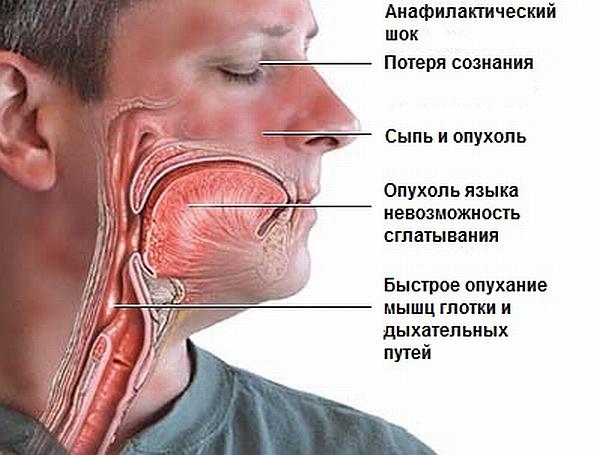 Аллергия на алкоголь: симптомы, причины и лечение заболевания