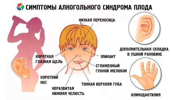 Фетальный алкогольный синдром | Основное представление