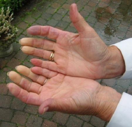 Немеют руки с похмелья – что делать?