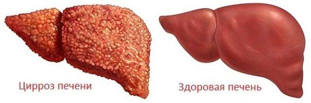 Алкогольный гепатоз: симптомы и лечение заболевания