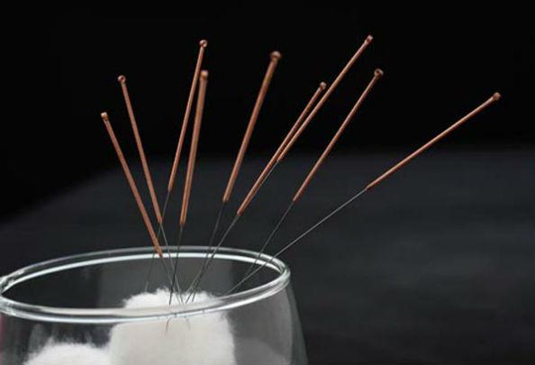 Лечение иглорефлексотерапией алкоголизма: методы, процедуры, противопоказания