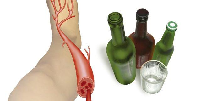 Почему после пьянки болят мышцы и ломит тело?