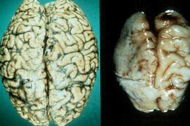 Влияние алкоголя на головной мозг, его работу и клетки